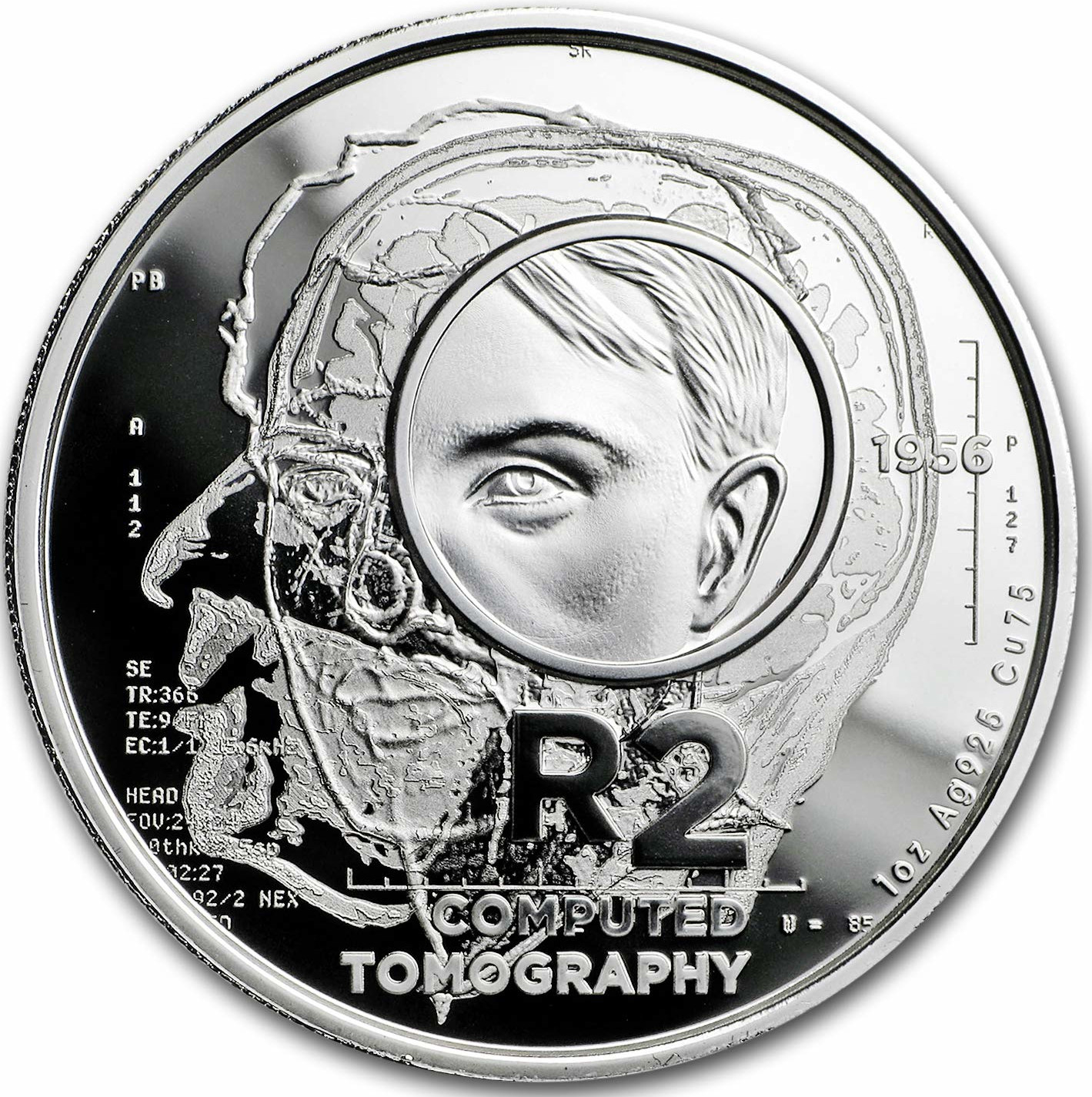 Silver Crown 2018 Computed Tomography: Photo R2 sterling silver crown 2019